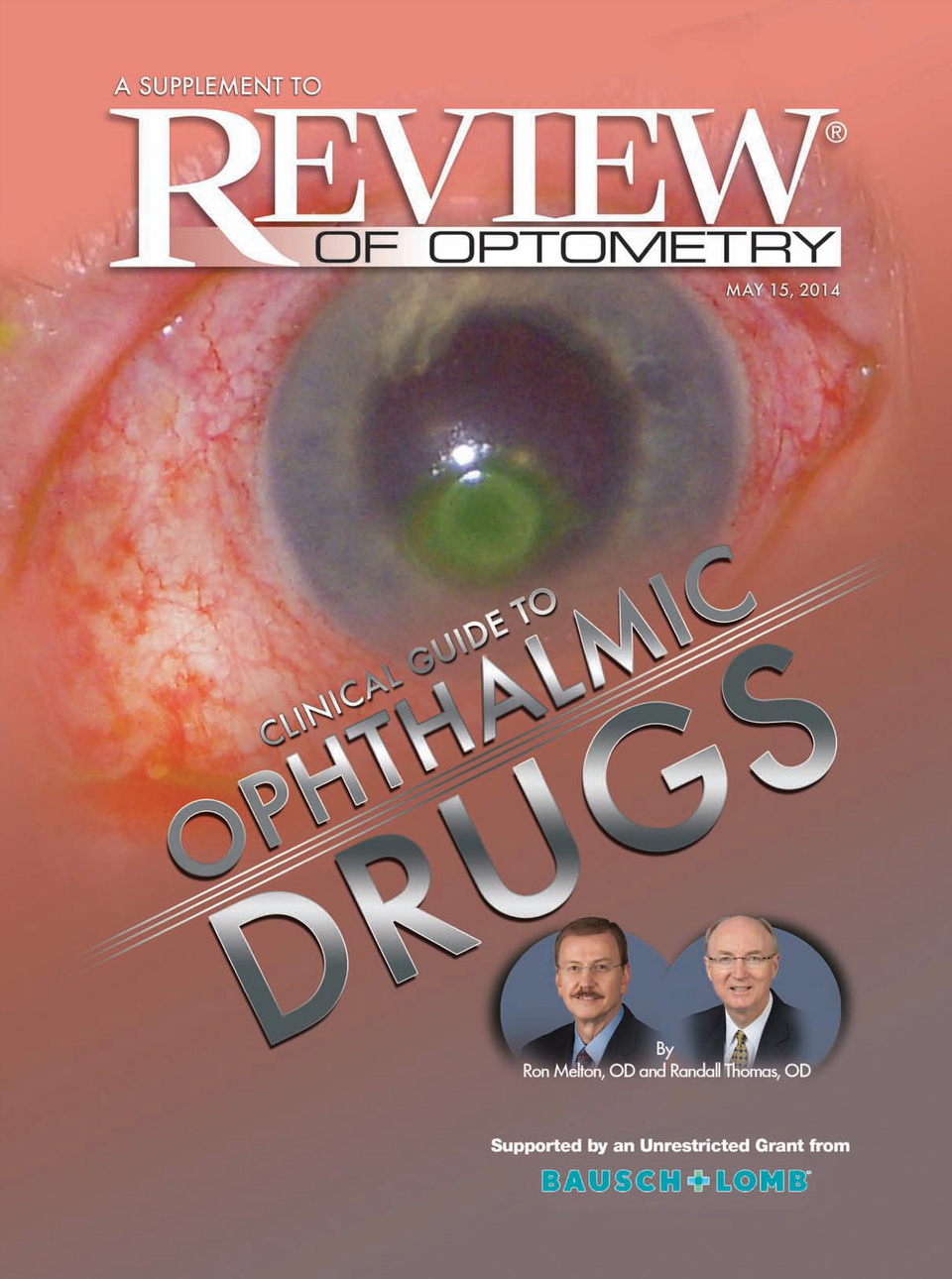 Reviews Supplements Ophthalmic Drug Guide May 2014