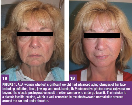 FIGURE 1. A: A woman who lost significant weight had advanced aging changes of her face including deflation, lines, jowling, and neck bands; B: Postoperative photos reveal rejuvenationbeyond the classic postoperative result in older women who undergo facelift. The incision isa classic facelift incision, which is well concealed in the shadows and normal skin creasesaround the ear and under the chin.