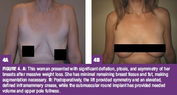 FIGURE 4. A: This woman presented with significant deflation, ptosis, and asymmetry of herbreasts after massive weight loss. She has minimal remaining breast tissue and fat, makingaugmentation necessary. B: Postoperatively, the lift provided symmetry and an elevated,defined inframammary crease, while the submuscular round implant has provided neededvolume and upper pole fullness.