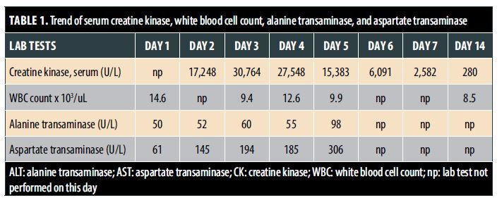 TABLE 1. Trend of serum creatine kinase, white blood cell count, alanine transaminase, and aspartate transaminase