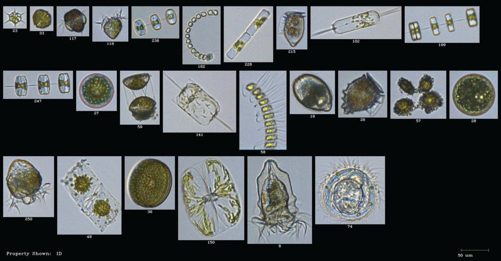 Images obtained from FlowCam of plankton during a cruise in the Gulf of Maine. Photo credit: Fluid Imaging Technologies